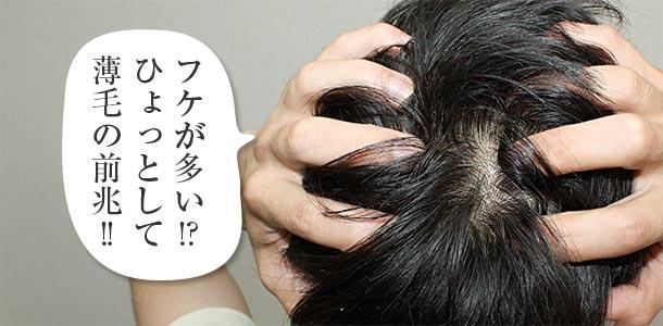 フケが多いのは薄毛の前兆
